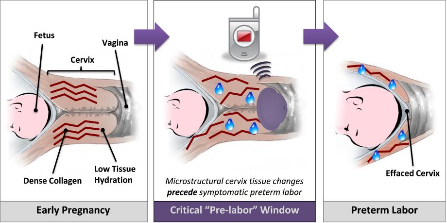 our solution the smart diaphragm smart diaphragm ucsf Placenta Diagram Pregnancy Cartoons