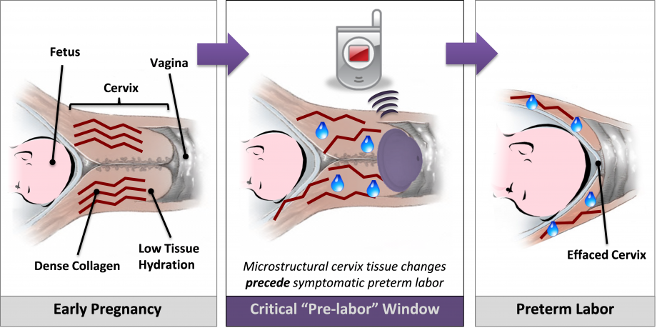 diagram showing preterm labor window of intervention